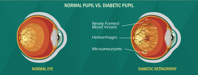 Normal Eye VS. Diabetic Pupil