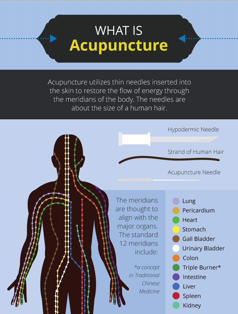 What is Acupuncture - Alternative Therapies: Benefits and Risks