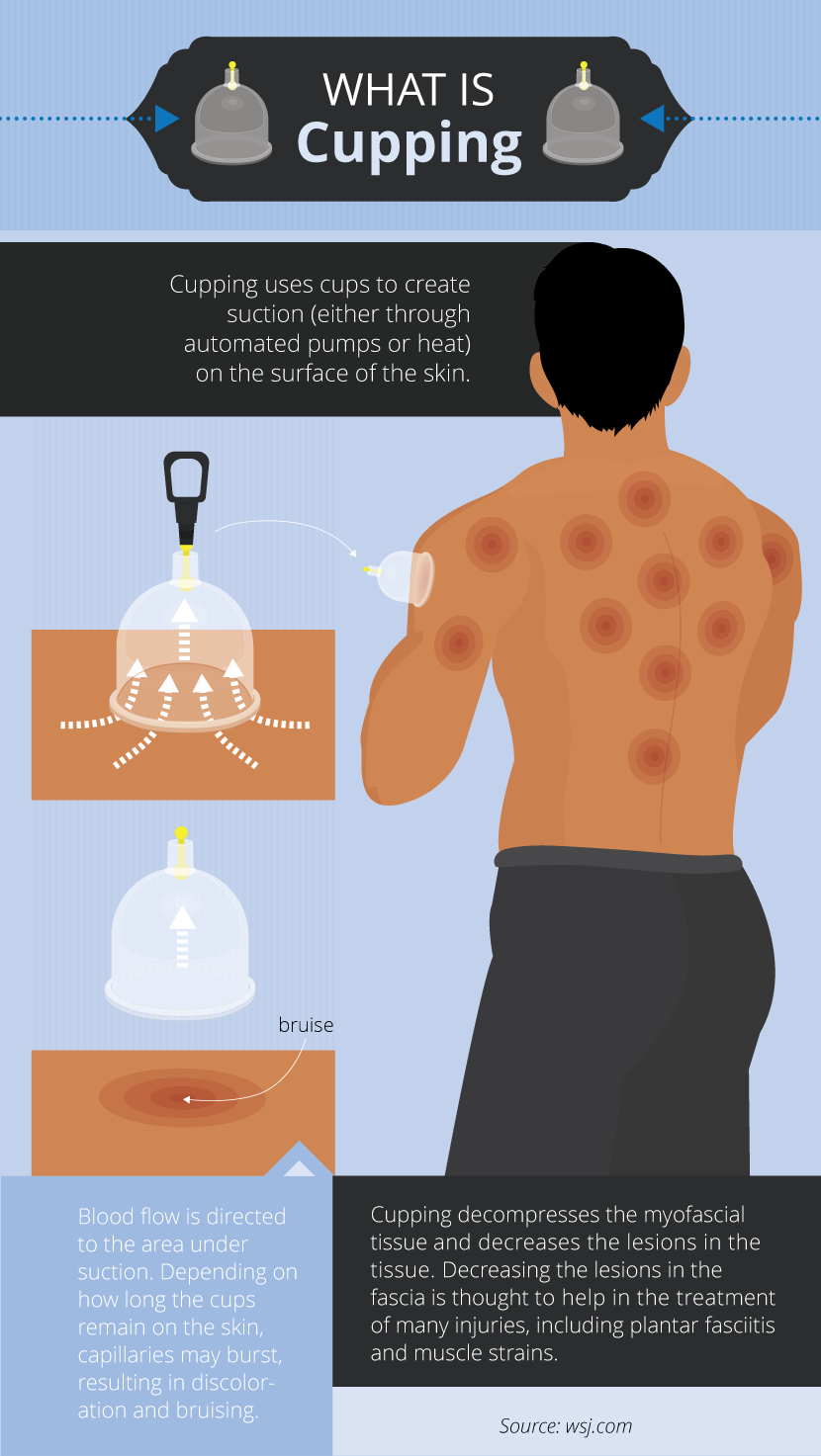 What is Cupping - Alternative Therapies: Benefits and Risks